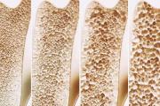 人到中年为什么要补钙?防治骨质疏松健康杀手