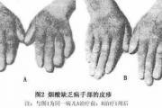 认识维生素B3(烟酸)