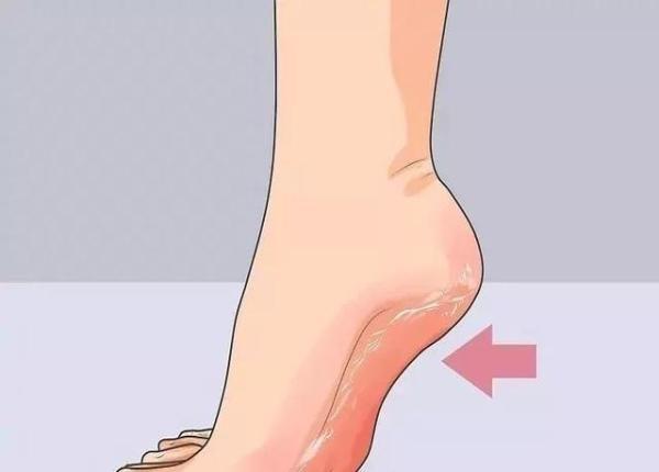 脚上出现这种变化,说明肝越来越差