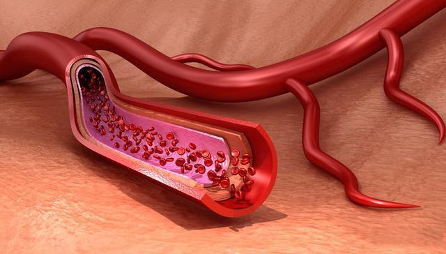 软化血管是真的吗?
