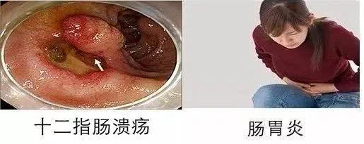 口臭,是因为胃里有幽门螺杆菌