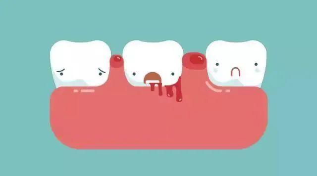 美乐家洁齿牙膏